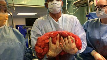 'Bierbuik' blijkt enorme tumor van 13 kilo