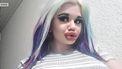 Vrouw laat lippen 20 keer opspuiten