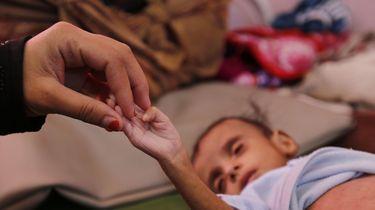 Tienduizenden kinderen overleden in Jemen
