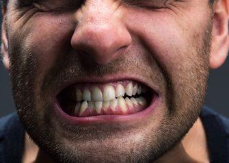 Een foto van een man die op zijn tanden bijt van de stress