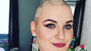 De vrouw die deed alsof ze kanker had, met kaalgeschoren hoofd.