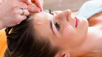 Cosmetische acupunctuur wint aan populariteit als natuurlijk alternatief voor botox en fillers. / Colourbox