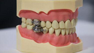 eet-slotje tanden afvallen