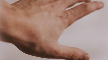 Agressieve man bijt stuk vinger van agent af